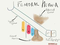 An overview of common hernias (inguinal and femoral) including the anatomy of the inguinal canal, causes of hernias and management options for hernias. Hernia Inguinal, Abdominal Hernia, Hernia Repair, Anatomy Images, Body Anatomy, Anatomy And Physiology, Radiology, Ultrasound, Surgery