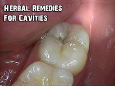 Herbal Remedies For Cavities - SHTF, Emergency Preparedness, Survival Prepping, Homesteading