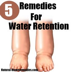 how to lose water retention printrest