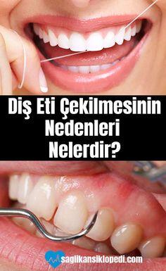 Diş eti çekilmesinin nedenleri neledir? Herkesin karşılaştığı bu sorunun tedavisi nedir? #dişetleri #doğaltedaviler #dişetisorunları #dişetihastalıkları #sağlıkansiklopedi