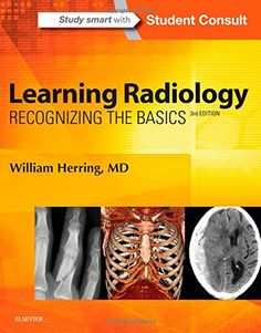 Learning Radiology Recognizing The Basics 3e 9780323328074 Medicine Health Science Books