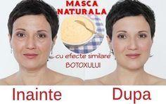 Botoxul se bucură de popularitate în rândul femeilor pentru efectele pe care acesta le are asupra pielii. Cu toate acestea, pentru cei care își doresc un t