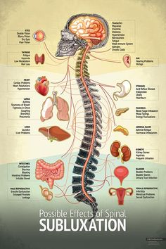 "Nurse Discover Chiropractic ""Subluxation"" Spine Organ Nerve Chart Subluxation Spine Chart - Chiropractic Patient Education Poster IdealPatient by MyChiroPractice Human Body Anatomy, Human Anatomy And Physiology, Muscle Anatomy, Human Spine, Weak Immune System, Hearing Problems, Skin Bumps, Spine Health, Medical Anatomy"