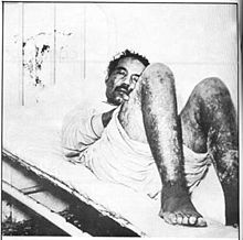 Pedro Albizu Campos - alleged that he was the subject of human radiation experiments. Dr. Damuy, preside of the Cuban cancer Association was allowed to examine him and concluded that burns on Albizu's body were caused by intense radiation. In 1994 the US Dept of Engergy admitted that radiation experiments had been conducted without consent on prisoners from 1950s to 70s.