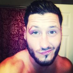 val chmerkovskiy injury video