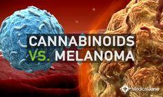 THC & CBD May Decrease Viability of Melanoma Cells - #MMJ #Cancer - http://www.medicaljane.com/2015/02/18/whole-plant-cannabis-extract-in-the-treatment-of-melanoma/  High regards, summitrecreationalretreat.com