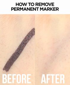 Remove Permanent Marker From Skin With This Clever Hack