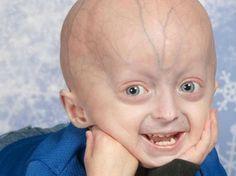 Duas crianças portuguesas participam em novo ensaio clínico da progeria