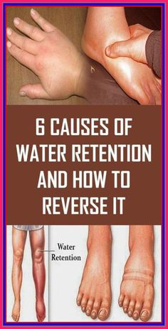 6 Causes of Water Retention and How to Reverse It – Herbal Medicine Book Health And Fitness Tips, Health Advice, Health And Nutrition, Health Care, Health Exercise, Health Facts, Health Quiz, Home Health, Nutrition Education