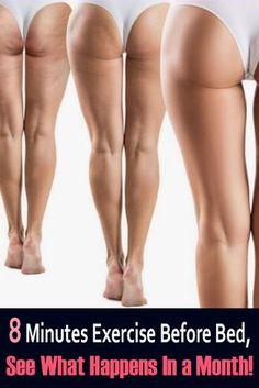 Thigh Cellulite, Causes Of Cellulite, Cellulite Exercises, Cellulite Cream, Cellulite Remedies, Reduce Cellulite, Anti Cellulite, Exercises For Thighs, Bed Exercises