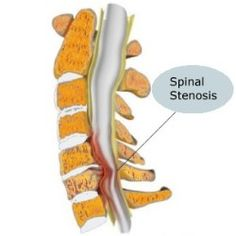 Lumbar Spinal Stenosis Narrowing of the Spine ? Causes of Lumbar Spinal Stenosis? Treatment for Spinal Stenosis ?Non-Surgical and Surgical Treatment for Lumbar Spinal Stenosis ? red More . Spinal Stenosis Surgery, Spinal Stenosis Treatment, Cervical Spinal Stenosis, Leg Pain, Back Pain, Spine Pain, Narrowing Of The Spine, Stenosis Of The Spine, Spondylolisthesis