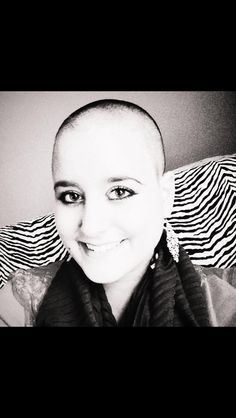 The most important beauty is within.   Bald is still beautiful.