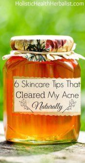 Natural Skin Remedies 6 Skincare Tips That Cleared My Acne Naturally - Learn about my top acne remedies that will get your skin clear fast! Natural Acne Remedies, Home Remedies For Acne, Skin Care Remedies, Pimples Remedies, Health Remedies, Skin Tips, Skin Care Tips, Skin Care Routine For 20s, Acne Skin