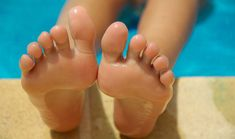 Watch This Video Ambrosial Home Remedies Swollen Feet Ideas. Inconceivable Home Remedies Swollen Feet Ideas. Hard Skin On Feet, Foot Remedies, Foot Soak, Athlete's Foot, Foot Pain, Heel Pain, Body Detox, Warts, Natural Home Remedies