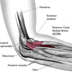 Tennis elbow, or lateral epicondylitis, is a condition in which the forearm muscles become damaged from overuse. The condition is common in athletes and in people with jobs that require vigorous use of the forearm muscles, such as painters. Tennis Elbow Relief, Tennis Elbow Symptoms, Tennis Elbow Exercises, Hand Therapy, Massage Therapy, Physical Therapy, Occupational Therapy, Massage Room, Massage