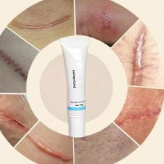 NEW HOT Nuobisong Facial Scar Removal Cremas Facial Spots Treatment Whitening Face Cream Stretch Marks moisturizing