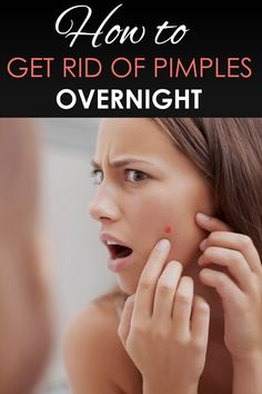 Wanna get rid of pimples? Wanna get a clear face? Check out this one to know how to get rid of pimples fastly How To Clear Pimples, How To Get Rid Of Pimples, Clear Face, Clear Skin, Pimple Marks, Pimples Overnight, Acne Treatment, Glowing Skin, Healthy Tips