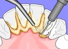 Hydropackulicity Definition #36  the removal of plaque from your teeth with an intense water system.