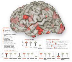 Your Brain in Love - Scientific American