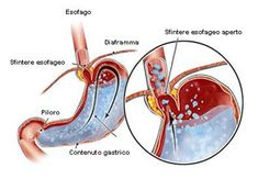Reflusso gastroesofageo