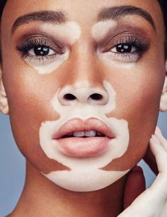 This is winnie harlow and she has a skin condition called vitiligo and she basically brought attention to this skin condition and made it beautiful in the eyes of fashion Chantelle Brown-young, Modelo Albino, Pretty People, Beautiful People, Pimple Scars, How To Get Rid Of Pimples, Cosmetic Treatments, Unique Faces, Belleza Natural