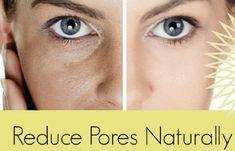Get Rid of Pores Easily - 15 Natural Tricks and DIYs To Shrink Large Pores