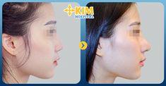 Một số điều cần biết về nâng mũi filler ~ PHƯƠNG PHÁP TRỊ MỤN SIÊU TỐC HIỆU QUẢ NHẤT