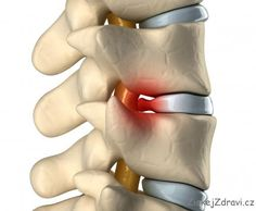 Herniated Disc Relief Kingwood TX doctor Tyler Hamel DC alleviating pain in his patients. Chiropractic and nutritional programs to help support disc health, decrease pain and increase range of motion in the spine. Disco Intervertebral, Disk Herniation, Spinal Decompression, Decompression Therapy, Degenerative Disc Disease, Spine Surgery, Sciatica Pain, Sciatica Relief, Qi Gong