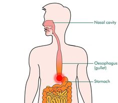 dry esophagus manual guide 1 manuals and user guides site u2022 rh urbanmanualguide today
