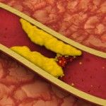 Nutrition and Atherosclerosis