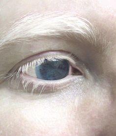white eyelashes blue eyes