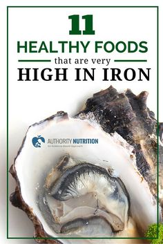 Iron is a mineral that serves important functions in your body, but many people don't get enough. Here is a list of 11 healthy iron-rich foods: https://authoritynutrition.com/11-healthy-iron-rich-foods/