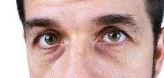 4 soluciones naturales para acabar con las ojeras - Mejor con Salud