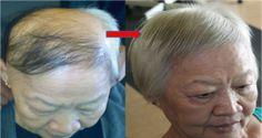 Ponte unas gotas de este jarabe en tu cuero cabelludo y espera a ver todo tu pelo perdido volver a crecer…¡IMPRESIONANTE!