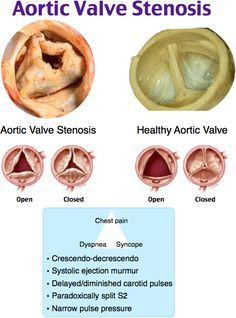 Aortic Valve Stenosis Rosh Review