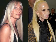 Donatella Versace Before and After Surgery Always interesting what you can find when you type in cosmetic surgery and other related terms