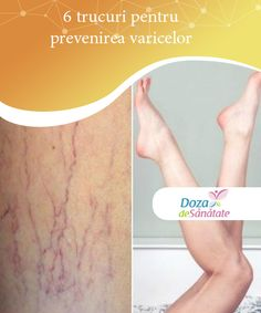 Hair Beauty, Health, Fitness, Loosing Weight, Varicose Veins, Health Care, Cute Hair, Salud