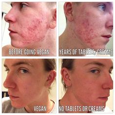 Will A Vegan Diet Help Acne? 6 Plant Based Foods To Eat For Healthier Skin