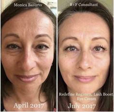 4 months results using Rodan and Fields Redefine Regimen and LAsh Boost! Amazing skin or your money back, guaranteed! Contact me at valnfath@gmail.com or shop online at https://valnfath.myrandf.biz/ #rodan+fields #randf #rodanandfields
