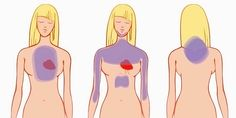 Heart attack is one of the major causes of death around the world. The best prevention of a heart attack is to recognize the possibility. For Your Health, Health And Wellness, Health Care, Health Blogs, Health Articles, Wellness Tips, Signs Of Heart Attack, Heart Attack Symptoms, Heart Symptoms