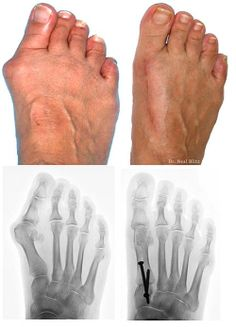 A guide to bunion surgery recovery including when you can return to certain activities, possible complications and how to get the best results after bunion surgery