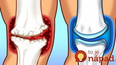 Joint Pain might be caused by a recent sports injury or most commonly might be related to arthritis. If you suffer from bone or Arthritis you know from personal experience that […] Sciatic Nerve, Nerve Pain, Sciatica, Double Menton, Whole Grain Foods, Tart Cherry Juice, Rheumatoid Arthritis Symptoms, Arthritis Diet, Fatty Fish