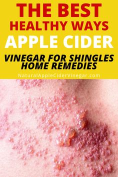 Cure For Shingles, Shingles Remedies, Treating Shingles, Recipe Using Apple Cider Vinegar, Best Apple Cider Vinegar, Natural Homes, Natural Home Remedies, Beauty Routines, Health Remedies