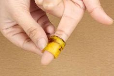 How to Remove Common Warts using Natural Treatments Banana Peel Uses, Banana Peels, Natural Treatments, Natural Remedies, Green Fruit, Healthy Skin Care, Warts, Teeth Cleaning, Beauty Tips