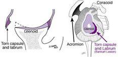 Bankart Repair for Unstable Dislocating Shoulders | UW Orthopaedics and Sports Medicine, Seattle