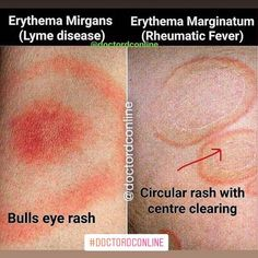 Erythema migrans in Lyme disease | Clinical Diagnosis ...