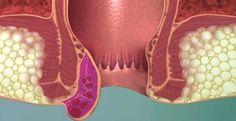 علاج البواسير الخارجية طبيعيا بدون جراحة Hemorrhoids Hemorrhoids Treatment Bleeding Hemorrhoids