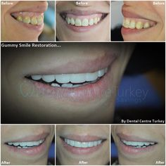 This patient wanted to remove the appearance of her gums along with a Smile Makeover. We carried out Gum Contouring along the upper jaw along with 8 CEREC Crowns. For the lower jaw, 2 sessions of Professional Teeth Whitening. Smile Makeover, Dental Bridge, Dental Center, Smile Design, Dentist In, Dental Implants, Contouring, Teeth Whitening, Crowns