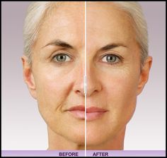 Curious About Discovering More Reasons To Use Dermal Fillers?