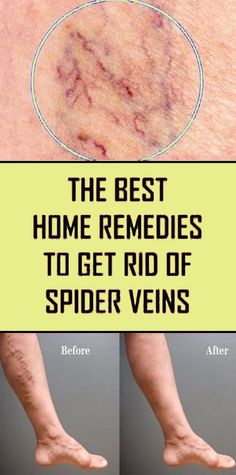 Best Home Remedies For Spider Veins. Here are some of the best home remedies for spider veins to help you get rid of your symptoms at home. All of the remedies listed below are all natural and you may already have some lying around your home. Get Rid Of Spider Veins, Get Rid Of Spiders, Spider Webs, Home Remedies For Spiders, Health And Wellness, Health Tips, Health Fitness, Health Care, Home Remedies